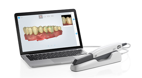 BenQ AB DentCare Corp. has been layout oral medical materials market. The first domestically manufactured intra-oral scanner debuted at the International Dental Exhibition