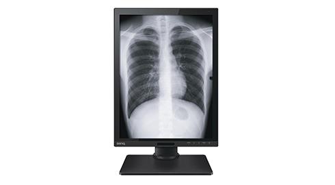 明基三丰前进印度医疗器材市场 主推彩色超音波与医疗显示器